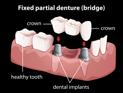 dental-bridges-aurora
